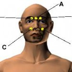 Most Important Acupressure Points for Headache and Migraine