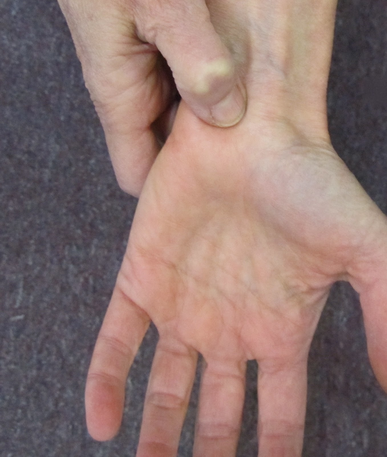 Most Popular Acupressure Points for Self Treatment