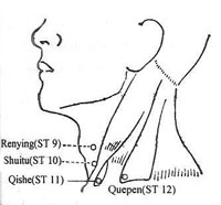 Acupressure Points for Vertigo